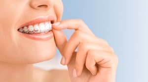 A woman placing clear aligners into her mouth