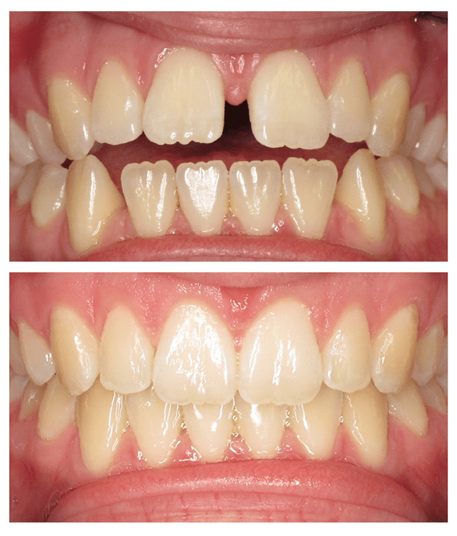 Invisalign before and after photo of an open bite patient
