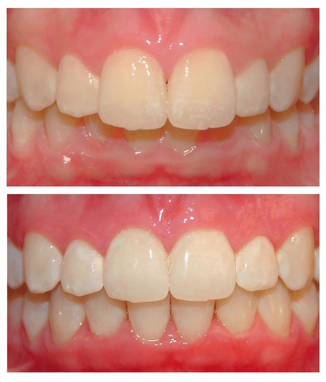 Before and after photo of an Invisalign patient in Lake Bluff, IL